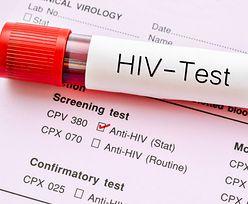 Przełom w leczeniu HIV i nadzieja dla milionów. Pierwszy raz skutecznie wyeliminowano wirusa