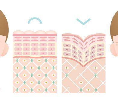 Acnerose: oczyszczanie cery z trądzikiem różowatym