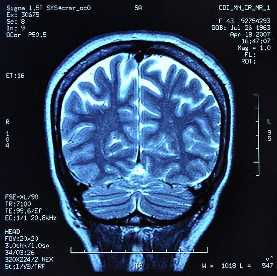 """""""To mit, że wykorzystujemy niewielką część mózgu"""""""