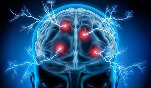 Ludzki mózg to wielki reformator