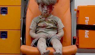Przeszedł przez piekło w Aleppo. Dzisiaj wygląda zupełnie inaczej