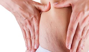 Jak dbać o skórę z rozstępami?