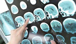 Polacy badają się coraz częściej. I słusznie, bo zachorowalność na nowotwory wzrasta.