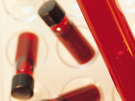 Czy warto przechowywać krew pępowinową?