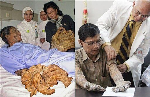 Człowiek-drzewo przed i po operacjach