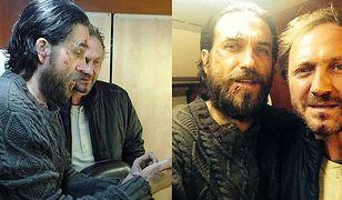 """Dorociński i Chyra z pokiereszowanymi twarzami. """"Starsi Panowie Dwaj!"""" FOTO"""