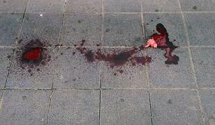 Tragiczna śmierć 19-latka. Chłopak umarł przez błędy szpitala i policji