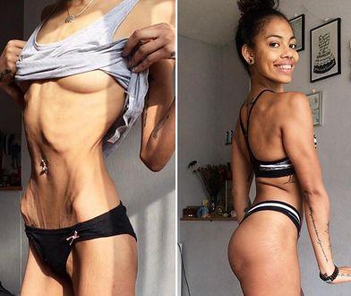 Przez 17 lat walczyła z anoreksją. Sukces zawdzięcza... pizzy