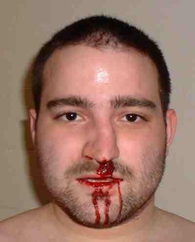 Krew z nosa