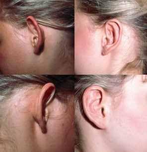 Efekty po operacji uszu