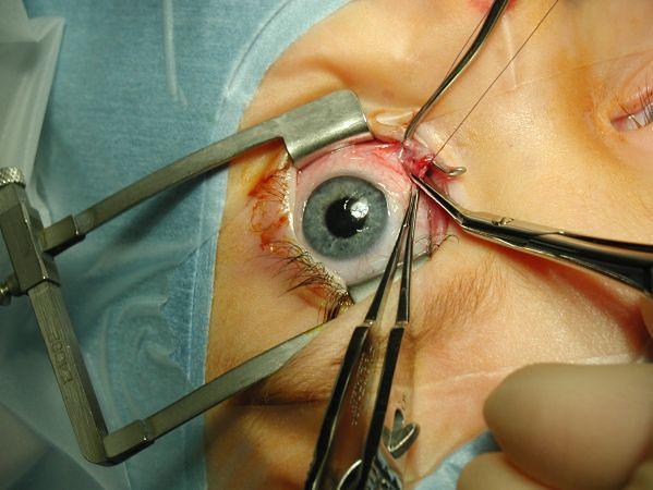 Oko w trakcie operacji zeza