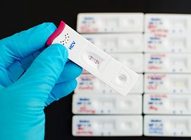 Wirus może doprowadzić do poronienia i poważnych powikłań. test kosztuje 30 zł