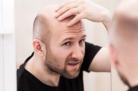 Przyjmowane leki a łysienie