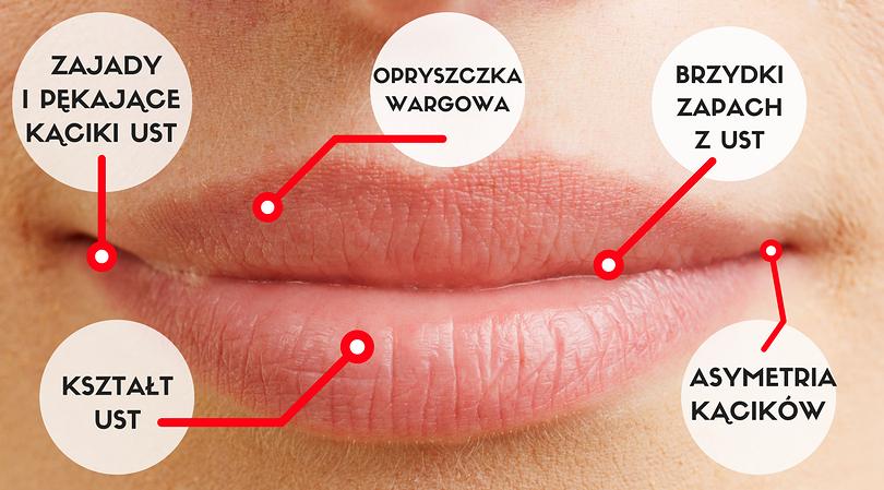 Brzydki zapach z ust