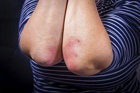 Sucha skóra na łokciach może być objawem choroby. Sprawdź, co oznacza