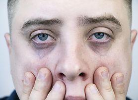 Rak płuc. Jednym z objawów może być obrzęk twarzy