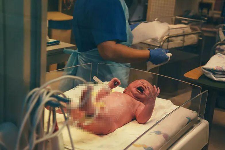 Szok w szpitalu. Chłopczyk urodził się z trzema penisami