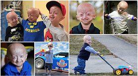 Progeria - przedwczesna starość