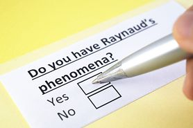 Objaw Raynauda - co to jest, jak powstaje i co oznacza? Choroba Raynauda i zespół Raynauda