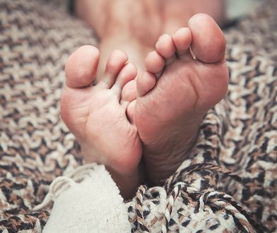 Wiele kobiet zmaga się z pękającymi piętami