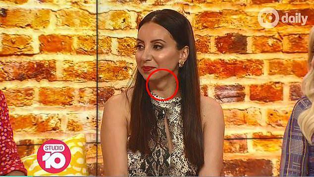 Dziennikarka australijskiej telewizji nie wiedziała, że coś jej dolega