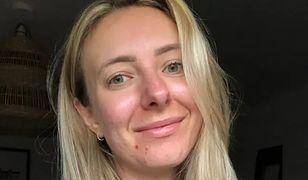 28-latka przez siedem lat ukrywała bolesny sekret. W końcu o nim opowiedziała