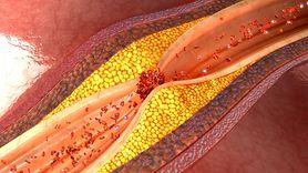 Nietypowe objawy miażdżycy kończyn dolnych (WIDEO)