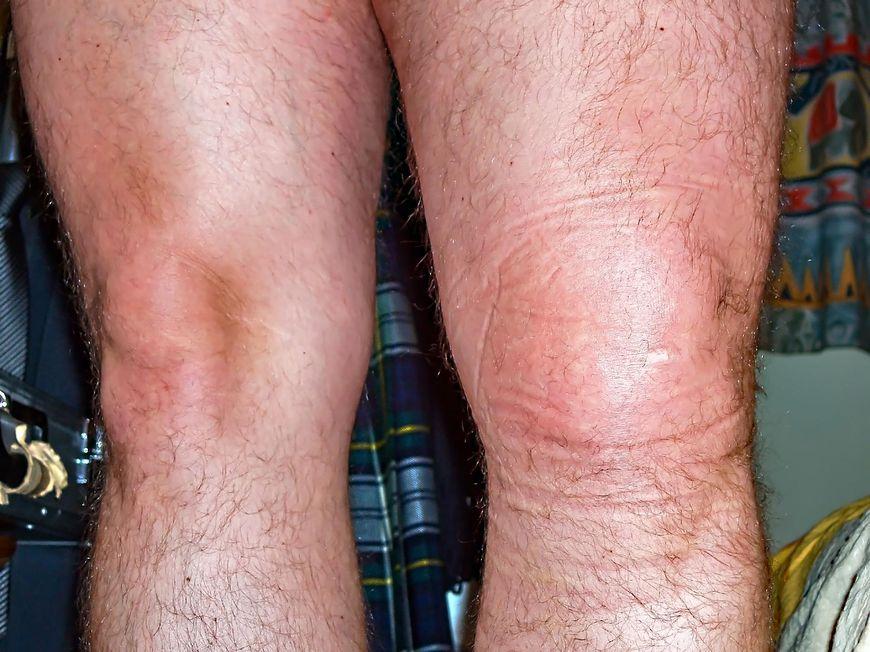 Spuchnięte kolana - najczęstsze przyczyny