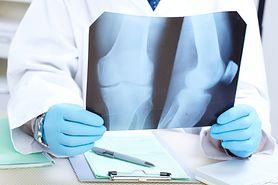 Objawy nowotworu kości