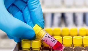Indyjski wariant wirusa bardziej zakaźny. Naukowcy potwierdzają