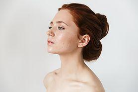 Jak zadbać o wrażliwą i alergiczną skórę przyczyny alergii, skóra atopowa, kosmetyki dla alergików