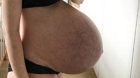 Brzuch po urodzeniu trojaczków. Mama pokazała zdjęcie bez retuszu