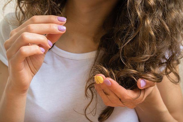Trycholog może ocenić stan naszych włosów i wdrożyć odpowiednie leczenie.