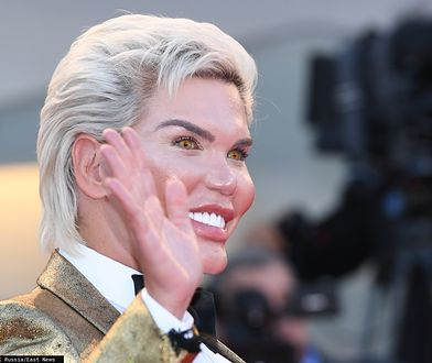 """Rodrigo Alves zmienił płeć. """"Żywy Ken"""" teraz jest jak Barbie"""