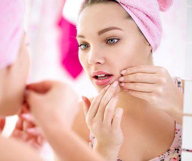 Trądzik na brodzie wymaga odpowiedniego leczenia