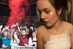 Niebezpieczna sytuacja na koncercie. Liam Gallagher chce pomóc poszkodowanej fance