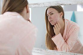 Przyczyny trądziku pospolitego - androgeny, dieta, higiena, czynniki zewnętrzne