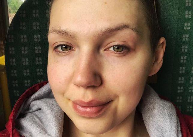 Wygrała z rakiem piersi. Gdy przyszła do lekarza po skierowanie na badania, doznała szoku