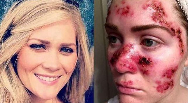 Ma raka skóry i przestrzega innych. Opublikowała zdjęcie chorej twarzy
