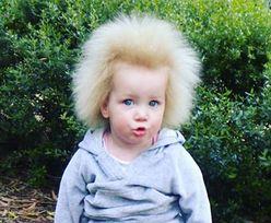 Włosy, których nie da się uczesać. Mama 11-latki szczerze o przypadłości córki
