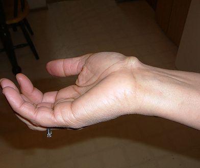 Ganglion – mało estetyczna, ale nieszkodliwa narośl na dłoniach i stopach