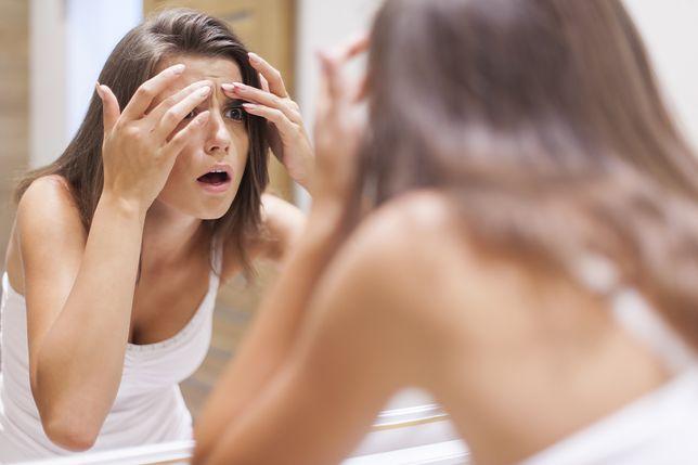 Nałogowe wyciskanie pryszczy – trądzik neuropatyczny
