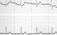 Nadciśnienie tętnicze - objawy