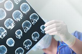 Co jeść, aby uniknąć udaru mózgu?