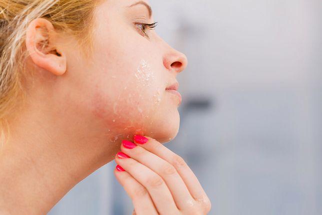 Skóra wrażliwa wymaga odpowiedniej pielęgnacji i stosowania właściwych kosmetyków