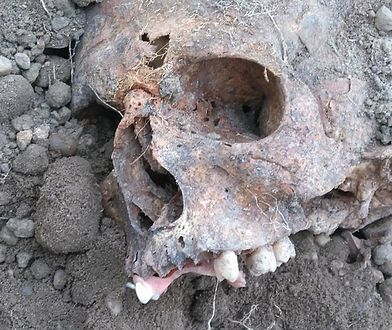Czaszka wyrzucona z rozkopanego grobu żołnierza z czasów II wojny światowej. Prawdopodobnie wyrwano z niej złote zęby
