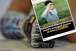 Pakistan. Najmłodszy człowiek z bionicznym ramieniem na świecie