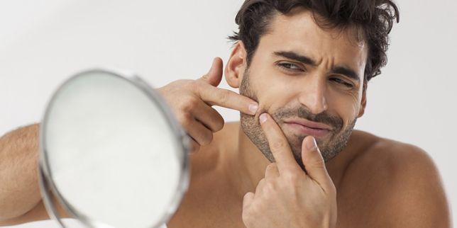 Męski trądzik może okazać się uciążliwą przypadłością dlatego warto poznać podstawowe metody pozbycia się tej przypadłości.