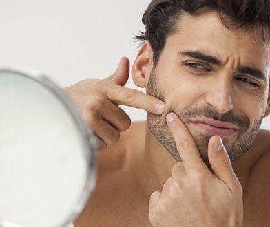 Męski trądzik – przyczyny powstawania i leczenie