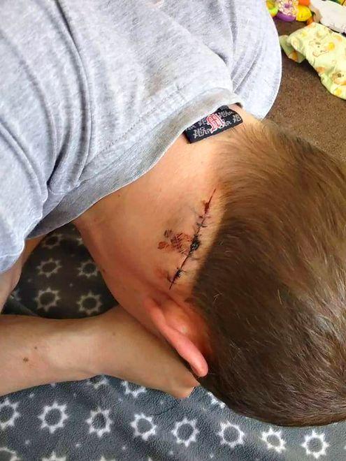 Szkocja: Polak zaatakowany nożem, bo nie poczęstował papierosem
